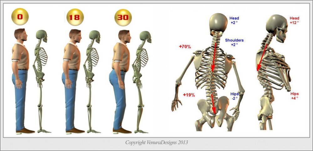 how to fix posture while standing